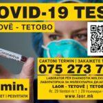 Тестирање за Ковид 19 - резултати за 30 мин